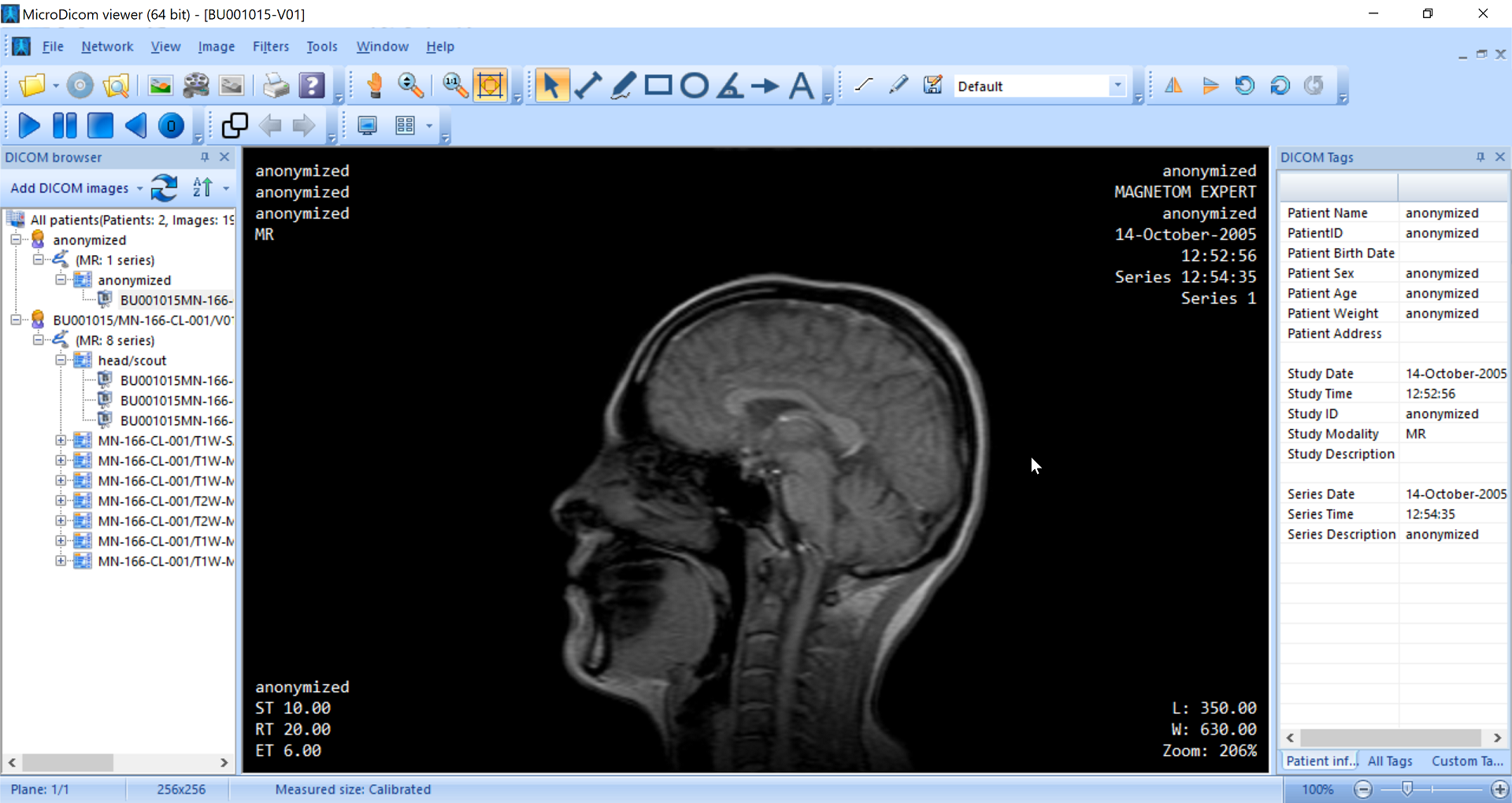 Dicom Viewer Open Source