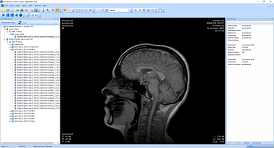 dicom viewer