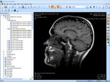 MicroDicom - Free DICOM viewer and software