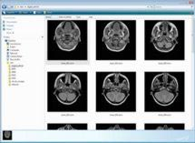 dicom viewer gratuit